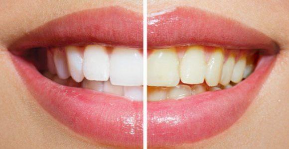 Clareamento Dental – Tudo o que precisa de saber