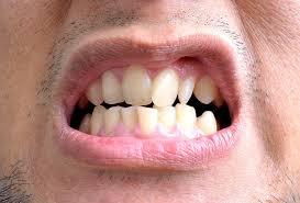 5 motivos que podem entortar os dentes