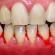 Doenças gengivais: Gengivite e Periodontite