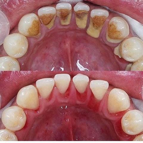 Como evitar o tártaro nos dentes?
