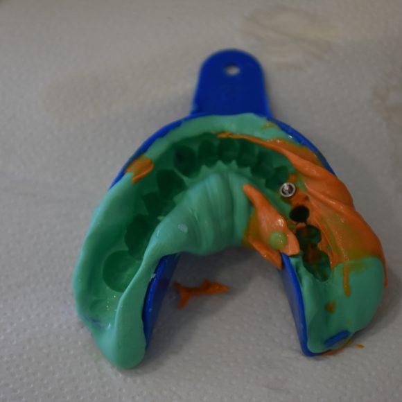 Moldes Dentários – Para que serve?
