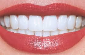 7 dicas para fortalecer o esmalte dos dentes