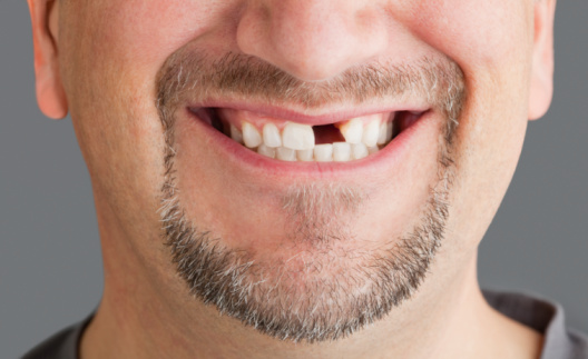 Como a boca lida com a falta de dentes?
