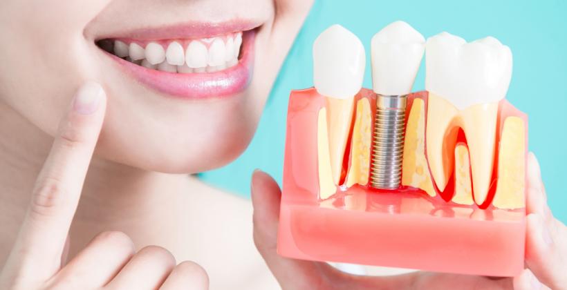 5 etapas para quem decidiu investir num implante dentário
