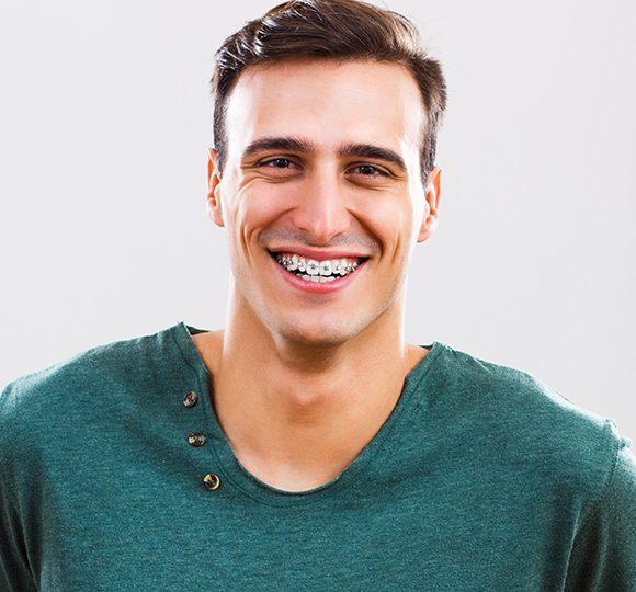 5 vantagens para usar aparelho dentário