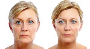 Procedimento de Envelhecimento – Facial